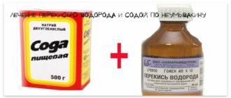 Лечение перекисью водорода и содой по Неумывакину